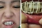 Удаление зуба для павлодарки обернулось переломом…