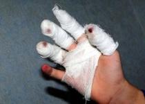 В Экибастузе подросток пострадал от петарды