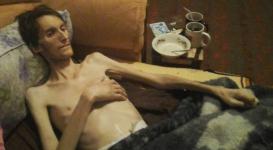 Прикованный к постели инвалид не может добиться госпитализации в Таразе