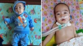 Пролежавшему 476 дней в реанимации ребенку сделали операцию