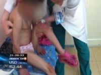 В Шымкенте ВИЧ-инфицированную малышку истязала приемная мать