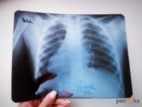 Стали известны данные о заболеваемости вирусной пневмонией в Павлодарской области с 1 августа