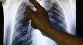 В Павлодарской области уменьшилось число больных туберкулезом