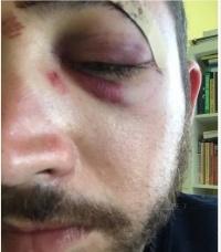 Американца избили за сходство с голливудским актером (фото)