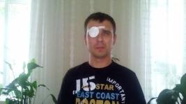 Лишившийся зрения павлодарский герой ждет донорскую оболочку глазного яблока